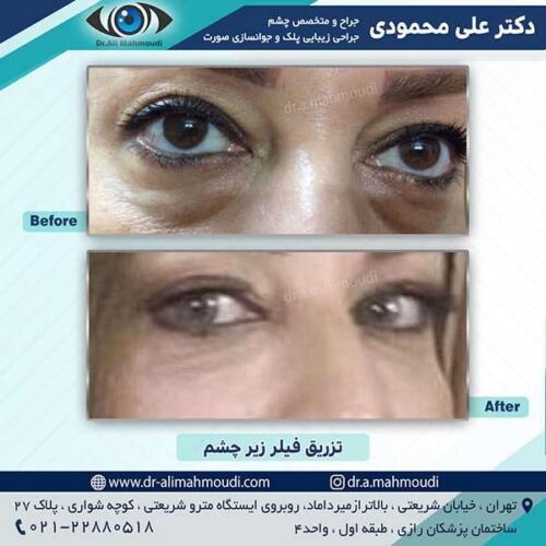 تزریق-فیلر-زیر-چشم-1