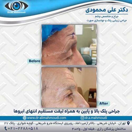 جراحی-پلک-12